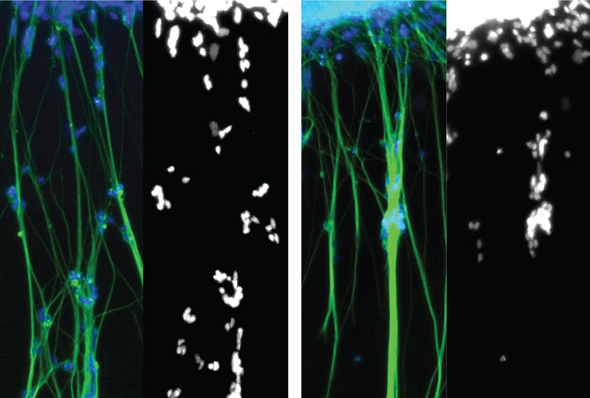 neurons in organoids